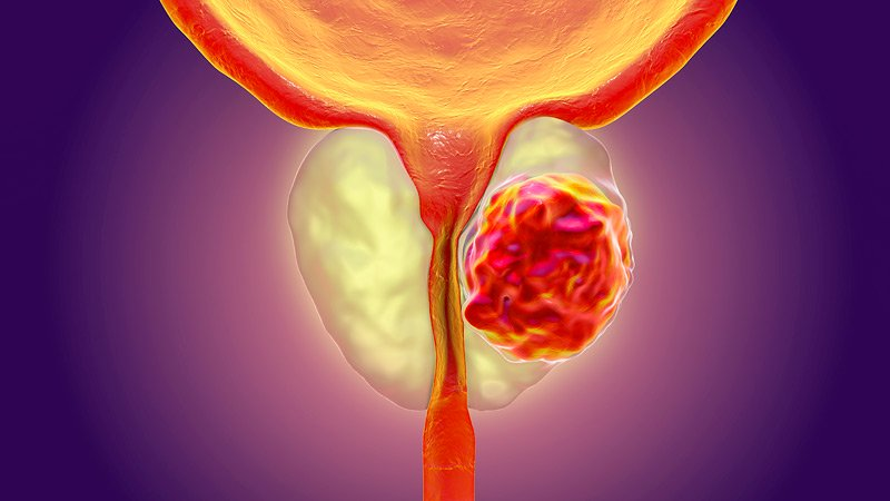 Prostate Cancer Treatment in Secunderabad, Hyderabad