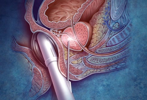 Prostate Treatment in Secunderabad, Hyderabad